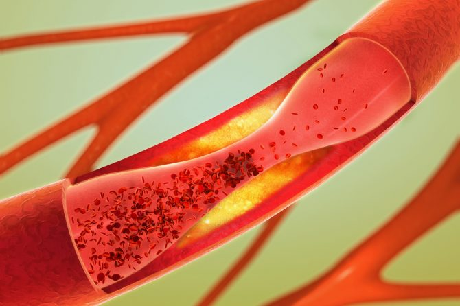 Peripheral Artery Disease Treatment Improved