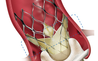 New Device to Treat Aortic Stenosis Patients!